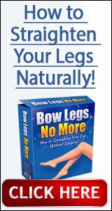 Bow Legs No More