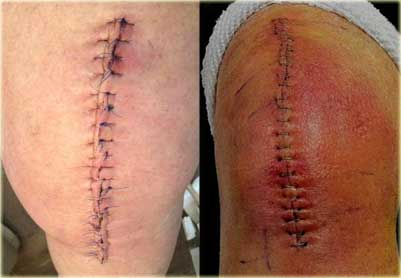 The Dangers of Correcting Leg Curvatures with Surgery